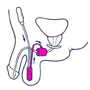 sfintere urinario