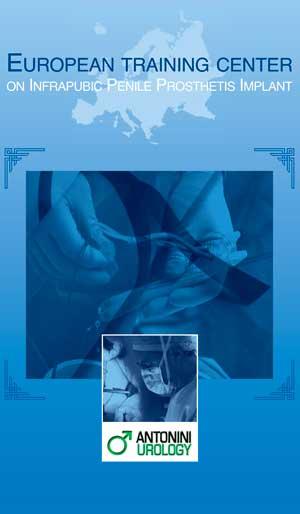 grafica European Training Center Penile Prosthesis Implant 2018 antoniniurology 2021
